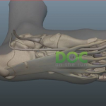 Running After Partial Rupture Of The Plantar Fascia