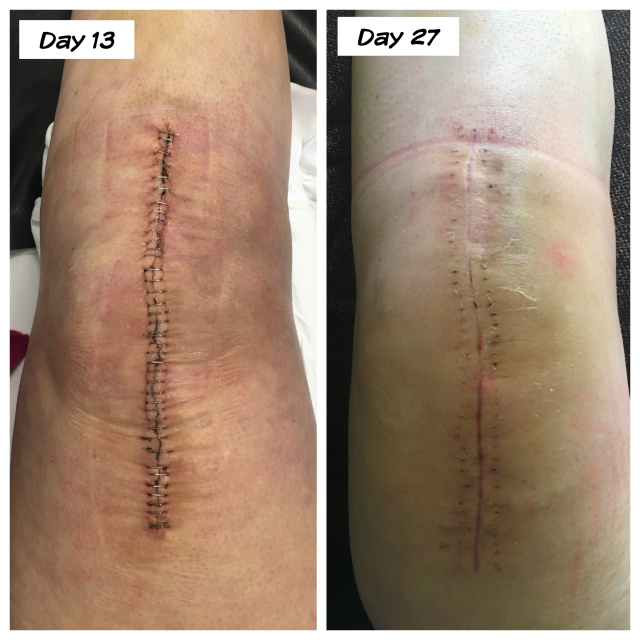 #47 1 Month summary: total knee replacement