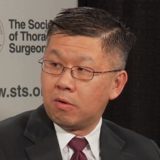 The Debate Over Exercise Restrictions in Cardiac Surgery