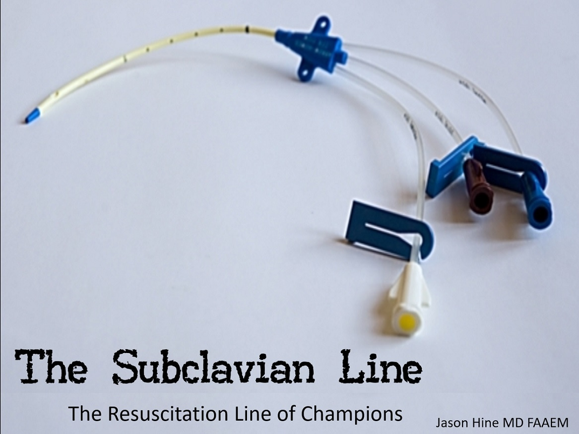 The Subclavian Line: the resuscitation line of champions
