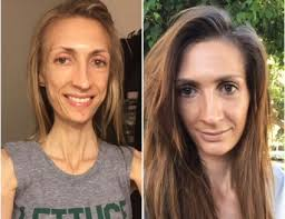 """Bethany 'lilsipper' Ugarte """"Health Crises, Hope and Healing"""" on Over the Influence with Arielle Lorre Podcast #104"""