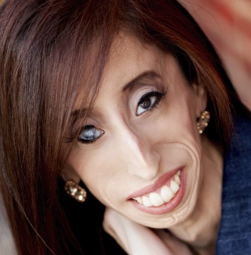 65: Lizzie Velasquez: Dare to Be Kind